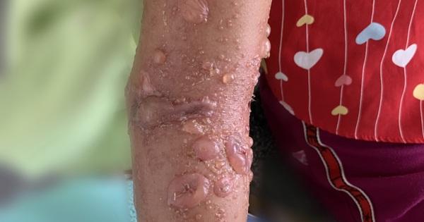 Bất ngờ làn da phỏng rộp sau khi tắm biển