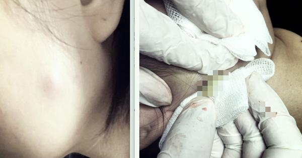 Tiêm botox làm đẹp, người phụ nữ 30 tuổi phải nhập viện