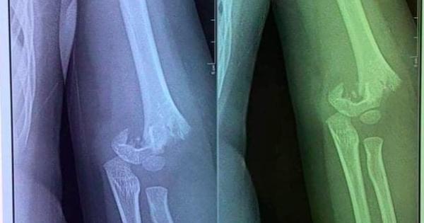 Sở GD-ĐT Hà Nội yêu cầu làm rõ vụ trẻ 5 tuổi bị ngã gãy tay từ sáng tới trưa mới đưa đi viện