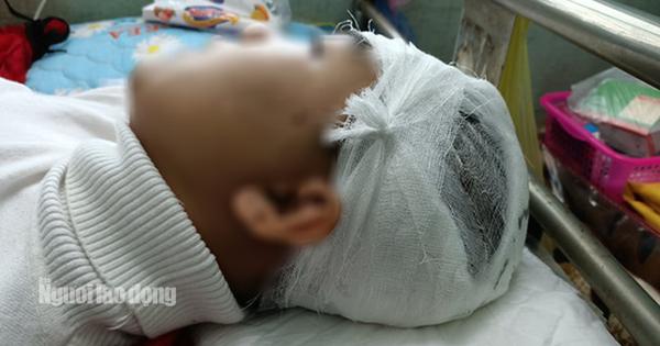 Vụ nam sinh lớp 11 bị đánh vỡ sọ não: Công an huyện nói gì?