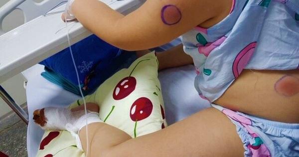 Phát hiện 1 bé gái ở Quảng Bình nhiễm vi khuẩn