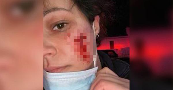 Từ vết cắn đáng sợ trên mặt nữ nhân viên y tế Mỹ
