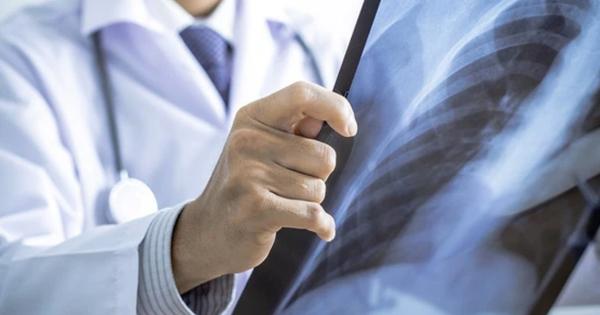 Bộ Y tế nêu lý do Việt Nam phản đối thuốc lá thế hệ mới
