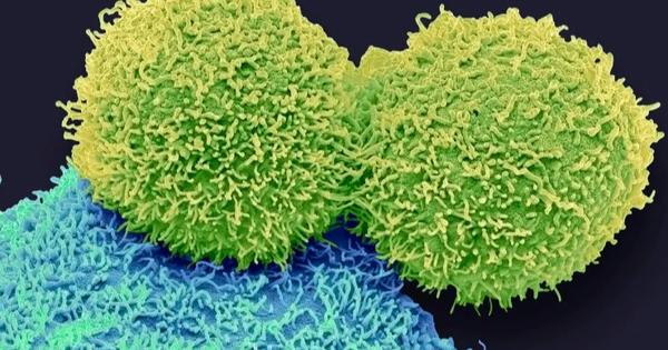 Phát hiện thứ gây ung thư ẩn trong cơ thể người, bấy lâu bị bỏ sót